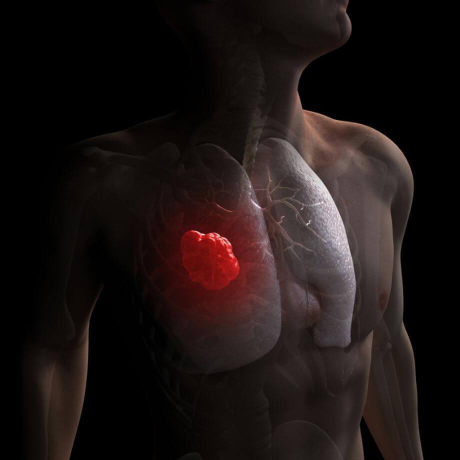Картинка рака легких