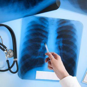 Алкоголь при лечении туберкулеза
