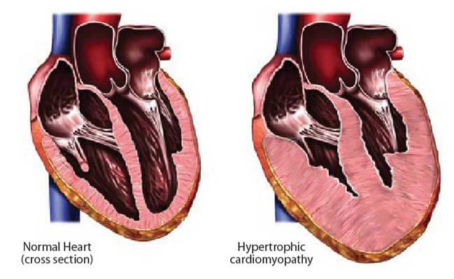 Диагностика алкогольной кардиомиопатии