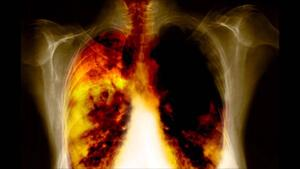 Рентген легких, о чем говорят дополнительные тени