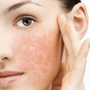 Покраснения кожи