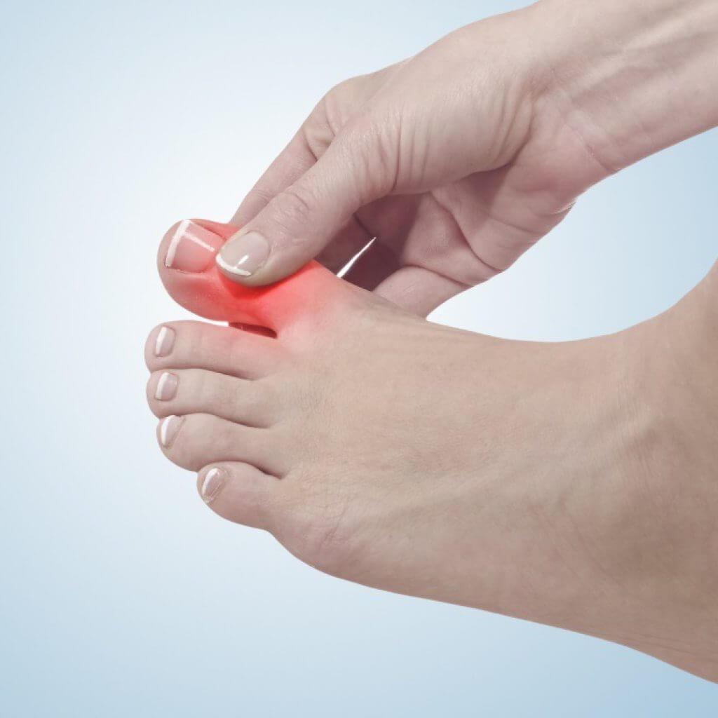 Полиартрит кистей рук и пальцев: лечение, симптомы 49